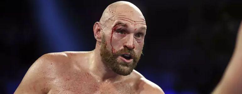 Tyson Fury Wins £5000 In Vegas Casino After Otto Wallin Win